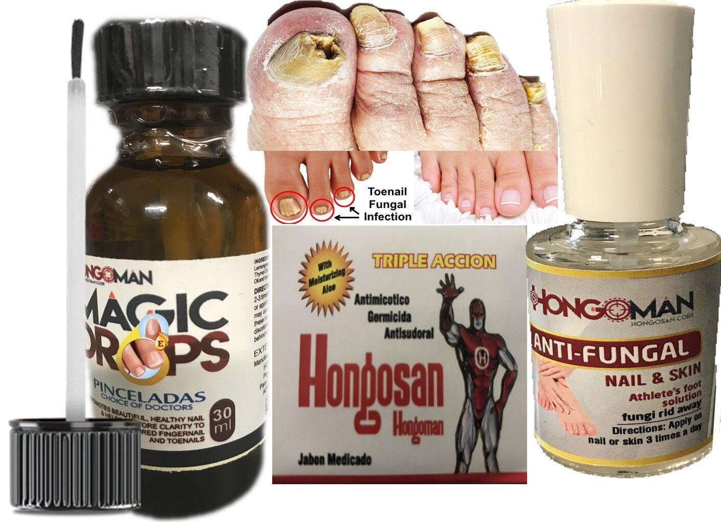 Loción Antihongos Tratamiento Antimicótico Para Infecciones Hongos Uñas piel kit