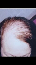 NON SURGICAL HAIR LOSS SOLUTION
