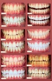 Whitens your teeth in 4 days guaranteed