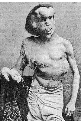 Photo. 1888-9.  Circus Sideshow Freak Joseph Merrick the Elephant Man