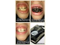 Amazing teeth whitening powder (excellent results)
