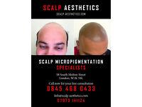 Scalp Micropigmentation For Men The ultimate modern solution for male pattern hair loss