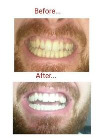 Laser teeth whitening business ! 450 ono