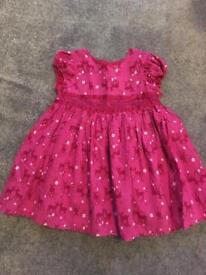 9-12 months dress