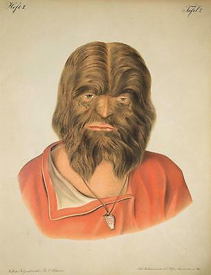 Old Print. Scary Circus Freak Hairy-faced Man (Old Hairy)