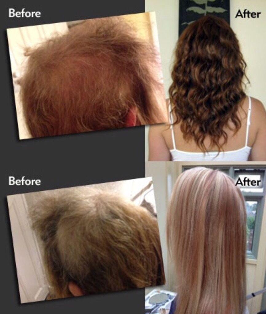 Human Hair Extensions From 100 Keratin Bondsmicro Ringmicrola