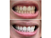 Professional Teeth Whitening Service in Derbyshire and Nottinghamshire in your own home