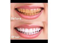 Teeth whitening !