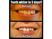 Unique Teeth Whitener Kit - SUPER QUICK