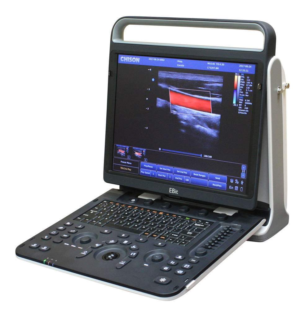 NEW NEW CHISON EBIT 60 PORTABLE ULTRASOUND SYSTEM