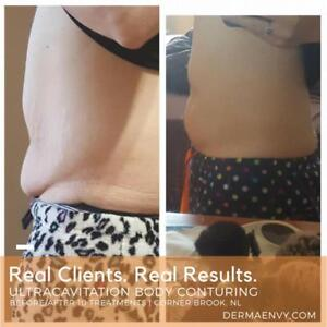 6 UltraCavitation Body Conturing/ Body Slimming Treatments  |  DermaEnvy Skincare