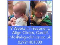 PLAGIOCEPHALY, BRACHYCEPHALY, FLAT HEAD SYNDROME HELMET TREATMENT FOR BABIES WITH A MIS-SHAPEN HEAD