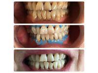 Professional LED teething whitening
