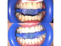 PROFESSIONAL TEETH WHITENING £50 OFFER