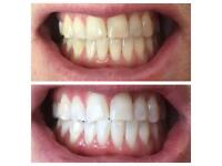 LASER TEETH WHITENING, INSTANT RESULTS, £70 PP OR £100 FOR TWO PEOPLE