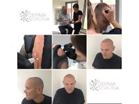 Scalp micropigmentation also known as SMP 5 FREE treatments available