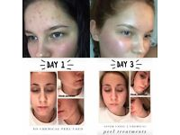 AHA is a acne treatment face peel see results after just three uses!!