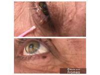 Skin tag removal and plasma fibroblast skin tightening. teeth whitening