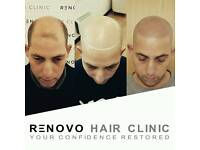 Scalp Micropigmentation is the Ultimate Solution to Hair Loss available at Renovo Hair Clinic