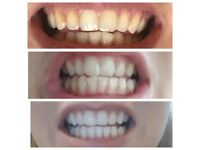 Mobile beauty - Teeth whitening , eyelashes , hair extensions