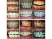 FULLY QUALIFED LASER TEETH WHITENING INSTANT RESULTS!!!