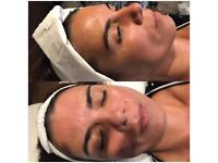 Non surgical face lift Cryogenic Oxygen Frozen Facial. Essenziale. Winchester