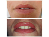 Lips Semi Permanent Makeup Model Required for Gold Level Advanced Portfolio - £65