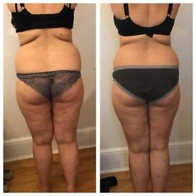 3D lipo body and face treatments