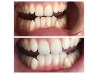 Professional LED teeth whitening