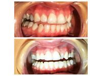 Teeth Whitening Watford