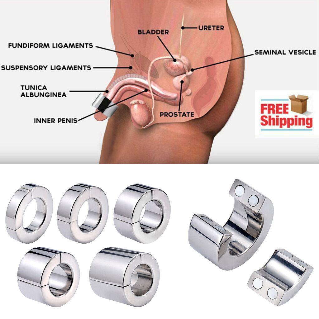 Prostatisis Magnet Vélemények