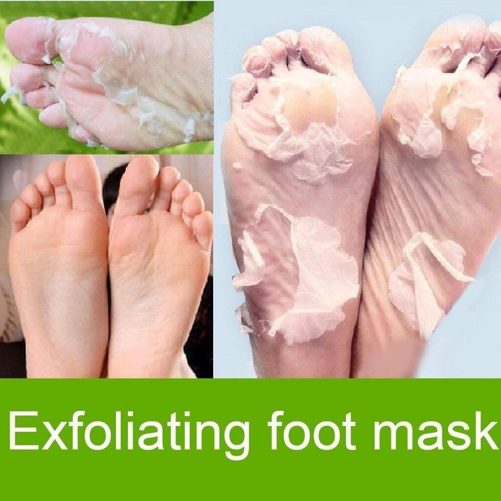 socks that remove dead skin