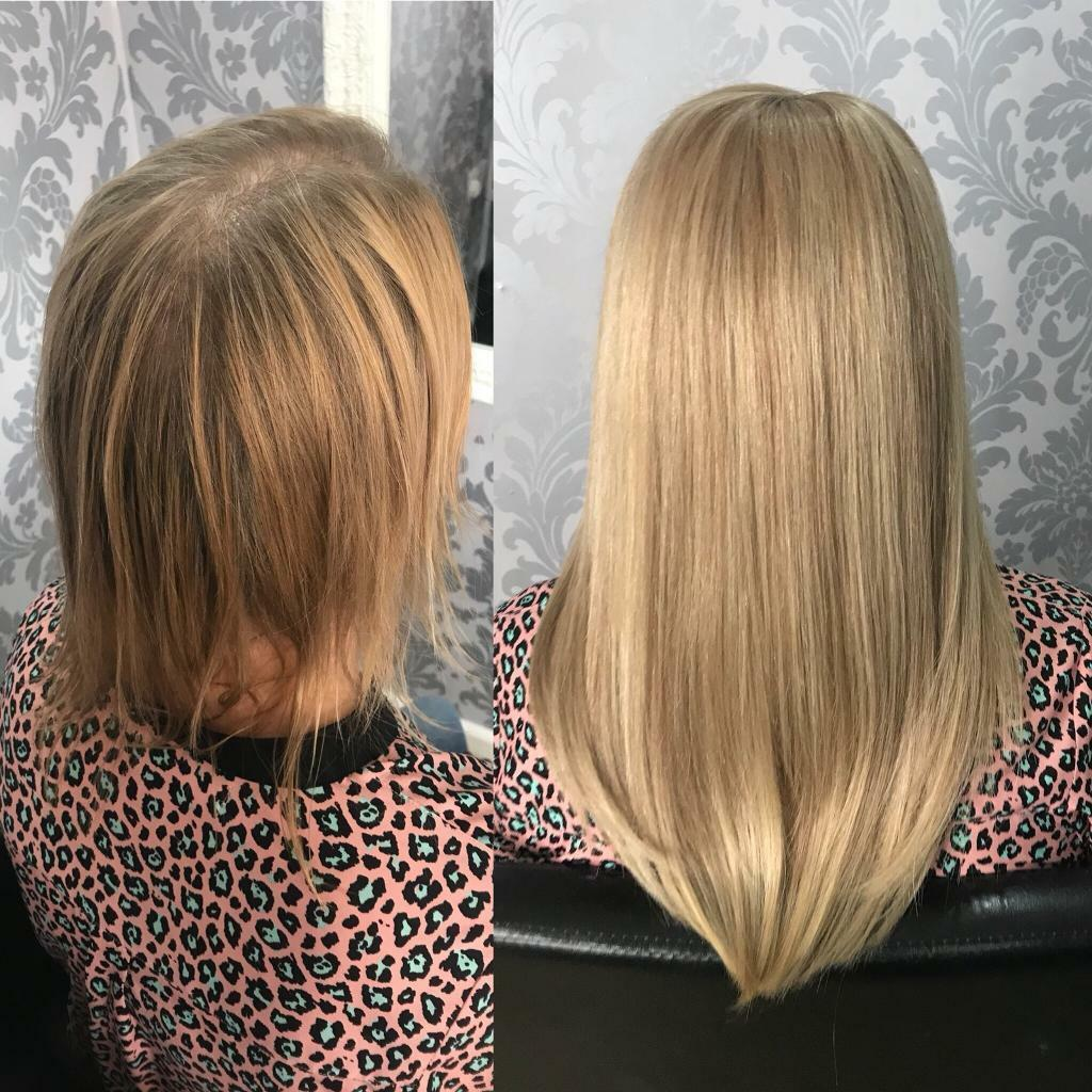 Hair Lossextension Specialist Specialising In 7 Of The Safest