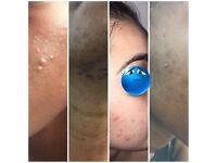 Hyperpigmentation and acne clinic