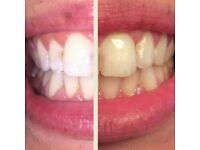 Teeth Whitening Solihull