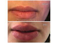 LIP FILLERS GREAT BARR