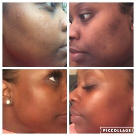 Mobile Microdermabrasion and Pigmentation medi spa facials