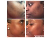 Mobile Microdermabrasion and Pigmentation medi spa facials