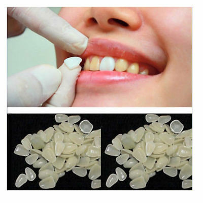 1 Pack Temporary Crown Dental A2 Material Veneer Patch Porcelain Dentist Clinic