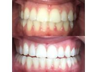 TEETH WHITENING ***OFFER*** £60 - NORTH LONDON