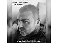 Say Goodbye to Hair Loss for Good with INKonHair Clinic Bristol - Scalp Micro Pigmentation