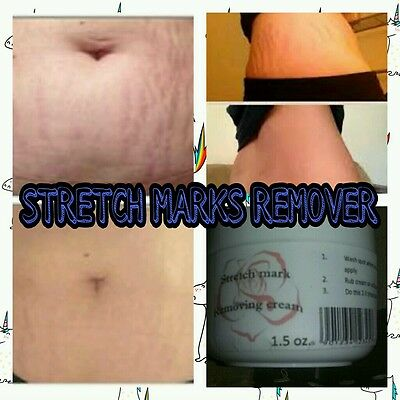 Stretch mark remover spider veins skin corrector discolored belly imperfection Stretch Mark Removal