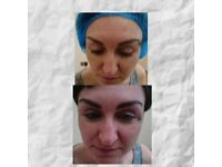 Microblading Specialist -£180 including topup