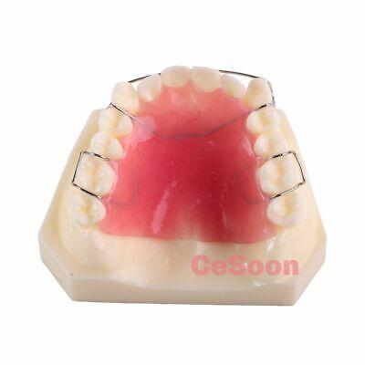 M3007 Dental Orthodontic Retainer Study Model Teeth Dentist Demonstrates Hawley