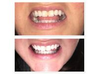 Teeth Whitening One Hour Session