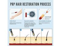 Platelet Rich Plasma (PRP) Training - Last chance to book 30% off!!!