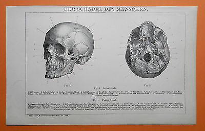 Schädel des Menschen Stirnbein Schläfenbein Jochbein   LITHOGRAPHIE v.1895