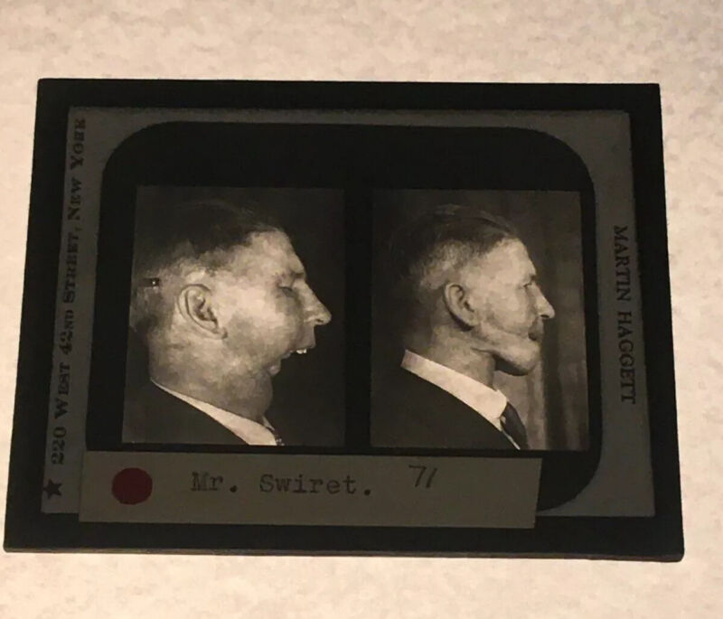 Antique Medical GLASS SLIDE PLASTIC SURGERY 1930s Martin Haggett New York City A