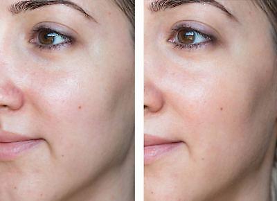 Anti-Aging SkinCare Kit for SENSITIVE Skin - Cleanser, Toner, Moisturizer, -