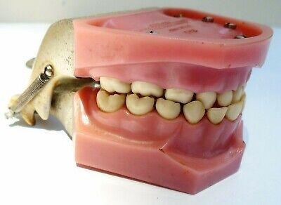 Vintage Columbia Dental Dentoform Ivorine Teeth Students Training Modelfilling